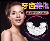 成人牙套矯正器保持器隱形牙套糾正齙牙不整齊地包天牙齒磨牙套