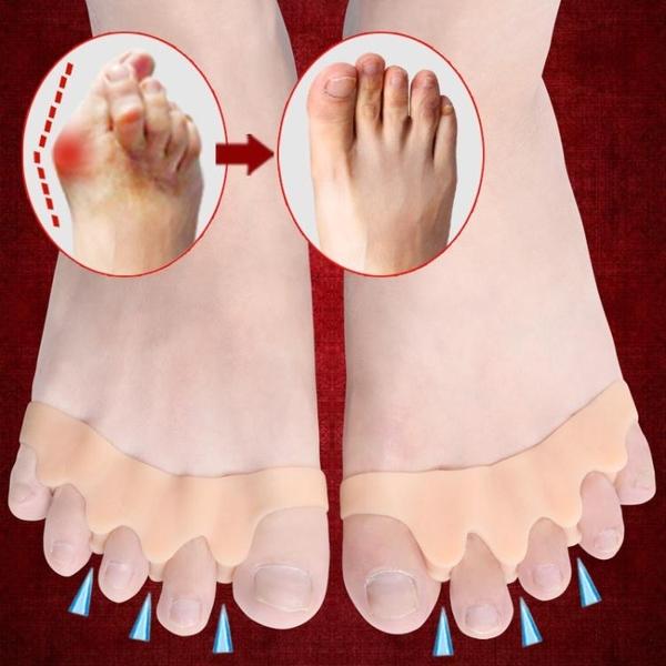 分趾器 硅膠大腳骨拇指外翻矯正器腳趾重疊彎曲變形分離分趾器男女日夜用 交換禮物 曼慕