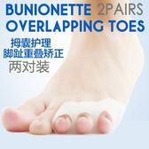 (低價衝量)小腳拇指外翻矯正器 小腳趾內翻分趾器 拇外翻重疊腳趾分離護理套