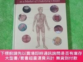 二手書博民逛書店Hall s罕見Manual of Skin as a Marker of Underlying Disease.