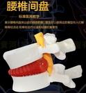 腰椎放大 腰椎間盤模型 擠壓突出演示 脊柱 脊椎骨病理演示模型