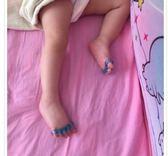(兩只裝)嬰兒幼兒童寶寶腳趾矯正器 腳趾重疊彎曲防磨 腳部拇指外翻分趾器