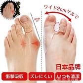 腳趾矯正日本腳拇指外翻矯正器大腳骨腳趾矯正器分趾器薄款透氣日夜用 獨家流行館