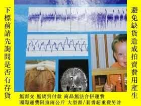 二手書博民逛書店atlas罕見of amplitude integrated eegs in the newbornY2548