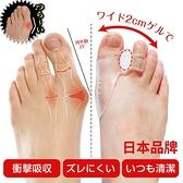 分趾器 日本腳拇指外翻矯正器大腳骨腳趾矯正器分趾器薄款透氣日夜用 宜品居家