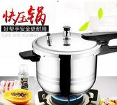 壓力鍋蘇泊爾高壓鍋電磁爐通用壓力鍋24cm家用304不銹鋼燃氣2-3-4-5-6人igo 貝芙莉
