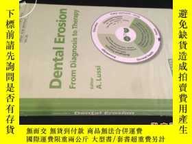 二手書博民逛書店Dental罕見Erosion 牙蝕Y5919