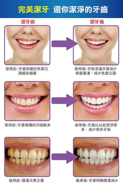 【AG061】《活性竹炭潔牙粉》 Bottokan竹炭牙粉 活性炭潔牙粉 牙齒洗牙粉 竹炭牙粉