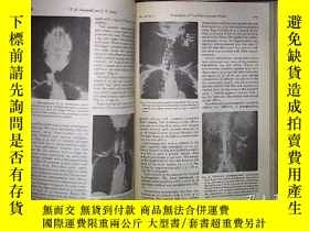 二手書博民逛書店THE罕見AMERICAN JOURNAL OF ROENTGENOLOGY RADIUM THERAPY AND