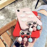 紅米s2手機殼note5小米紅米5plus少女心可愛