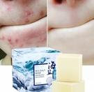 硫磺洗臉羊奶潔面精油手工皂100g 海鹽控油香皂 痘痘香皂 控油皂 卸妝潔面香皂NailsMall