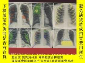 二手書博民逛書店Chest罕見X-rays for Medical Studen