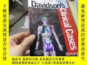 二手書博民逛書店davidson s罕見clinical cases 20351