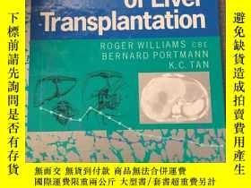 二手書博民逛書店The罕見practice of liver transplantationY450436