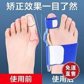 分趾器 拇指外翻矯正器日夜用拇男女腳指帶大腳骨糾正器可穿鞋  【全館免運】