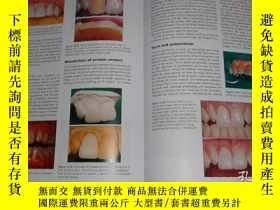二手書博民逛書店Advanced罕見Operative Dentistry: A