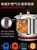 蘇泊爾304不銹鋼高壓鍋家用燃氣電磁爐通用壓力鍋1-2-3-4-5-6人NMS 小明同學