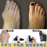 腳趾矯正帶腳趾彎曲外翻矯正器