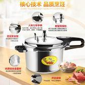 高壓鍋電磁爐燃氣通用 壓力鍋家用湯煲迷你1-2-3-4-5-6人防爆商用igo  時尚潮流
