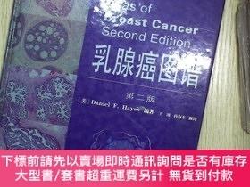 簡體書-十日到貨 R3Y乳腺癌圖譜(第2版)[Atlasof Breast Cancer]/[美] 海斯
