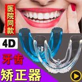 牙齒糾正器成人隱形牙套保持器齙牙天地包矯正夜間防磨牙固定硅膠【快速出貨八五折】