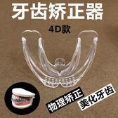 艾爾隱形牙齒矯正器成人牙套夜間防磨牙固定保持器天地包糾正器【快速出貨八五折】