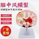 人體病理腦模型 病變腦解剖 腦構造 腦功...
