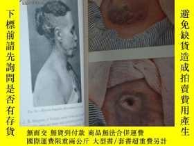 二手書博民逛書店An罕見Introduction to Dermatology