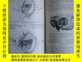 二手書博民逛書店Manual罕見of operative surgery 192