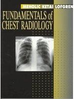 二手書博民逛書店《Fundamentals of Chest Radiology