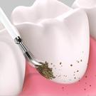沖牙機 清潔牙結石去除器家用超聲波洗牙器牙垢電動潔牙儀牙齒神器【快速出貨八折搶購】