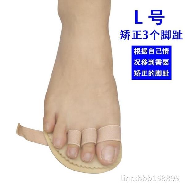 分趾器 腳趾彎曲指弓形爪型趾頭變形重疊 星河光年