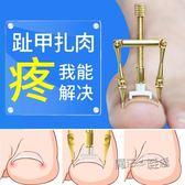 甲溝嵌甲矯正器修正腳指甲長肉裏腳趾甲糾正內嵌勾腳溝炎正甲神器   魔法鞋櫃