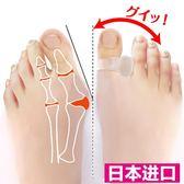 日本大腳趾外翻矯正器日夜用成人可穿鞋女大腳骨大拇指外翻分趾器  西城故事