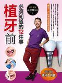 (二手書)植牙前必須知道的12件事