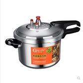 壓力鍋 恭喜福高壓鍋煤氣灶壓力鍋家用燃氣電磁爐通用小迷你商用大容量 特賣