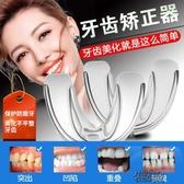 牙套成人防磨牙地包天鋼齙牙兒童牙套 街頭布衣