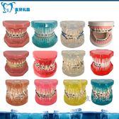 尺寸兩種以上請詢問報價牙齒模型口腔模型 牙科正畸模型