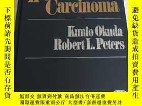 二手書博民逛書店Hepatocellular罕見Carcinoma(肝癌細胞)Y258294 Kunio Okuda Robe