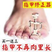 指甲矯正器 卷甲修腳工具 【轉角1號】