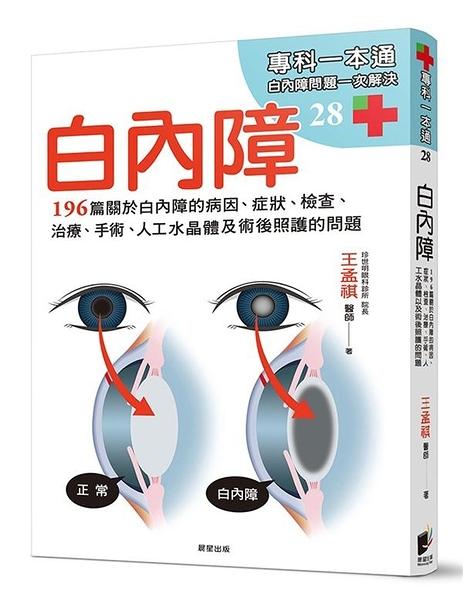 白內障:196篇關於白內障的病因、症狀、檢查、治療、手術、人工水晶體以及術後照護的問題