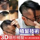 8X5公分下標區 隱形補髮塊 前額脫髮、...