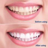 口腔救星潔牙神器 牙齒速效去黃牙洗煙漬