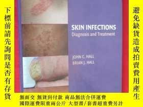 二手書博民逛書店Skin罕見Infections: Diagnosis and