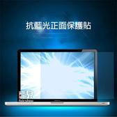 【飛兒】16:9 14/15 吋 抗藍光螢幕保護貼 309x174 344x194 筆電 電腦 保護膜