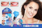 【NF162牙齒拋光美白機】美牙儀橡膠拋光器潔牙器 牙齒美白增白神器洗牙機器
