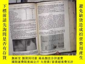 二手書博民逛書店DISEASES罕見OF THE CHEST 1961 VOLU