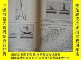 二手書博民逛書店英文原版:Operative罕見Surgery(Volume 2