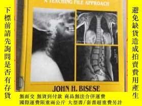 二手書博民逛書店英文書罕見spinal MRI ateaching file approach 脊柱MRI椎弓根入路Y1635