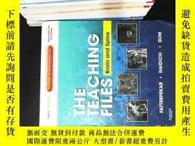 二手書博民逛書店The罕見Teaching Files: Brain and SpineY167411 Girish、Thom